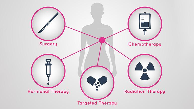 Menaxhimi i dhimbjes tek kanceri i gjirit